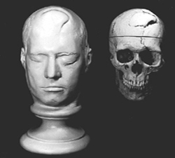 Phineas Gage at Harvard