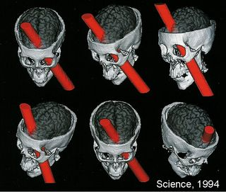 Phineas Gage Science Magazine